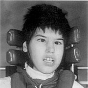 Black and white image depicts Tracy Latimer - a young Caucasian girl with short hair sitting in her wheelchair.